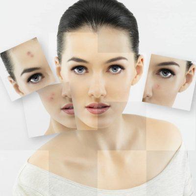 acne-intro